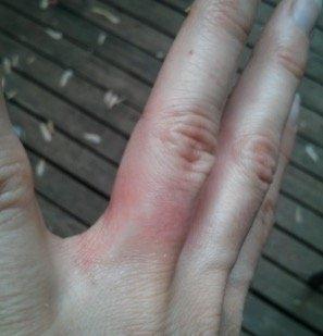 nickel-allergy