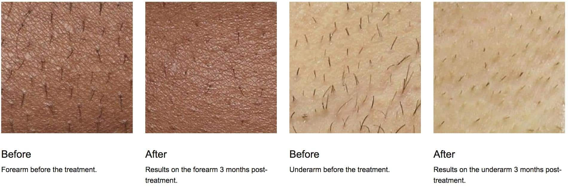 before and after skin hair removal results